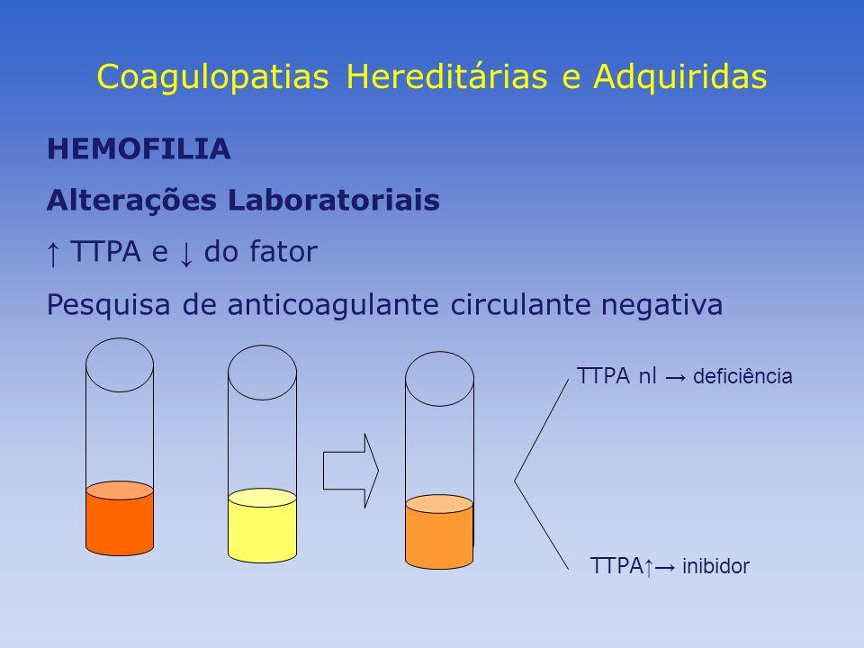 Coagulopatias Hereditárias e Adquiridas HEMOFILIA Alterações Laboratoriais TTPA e do fator Pesquisa de anticoagulante circulante negativa TTPA nl defi