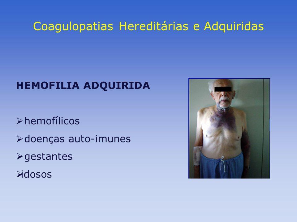 Coagulopatias Hereditárias e Adquiridas HEMOFILIA ADQUIRIDA hemofílicos doenças auto-imunes gestantes idosos