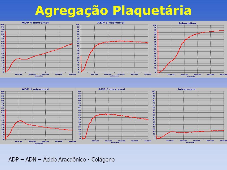 Agregação Plaquetária ADP – ADN – Ácido Aracdônico - Colágeno