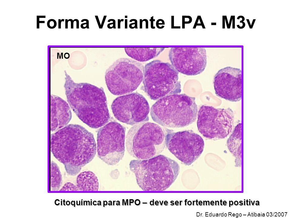 Forma Variante LPA - M3v Citoquímica para MPO – deve ser fortemente positiva MO Dr. Eduardo Rego – Atibaia 03/2007