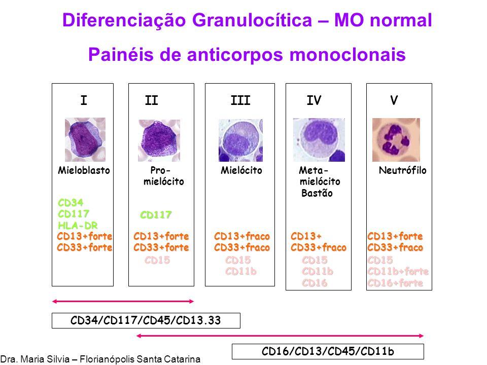 Diferenciação Granulocítica – MO normal Painéis de anticorpos monoclonais CD34CD117HLA-DR I II III IV V Mieloblasto Pro- Mielócito Meta- Neutrófilo mi