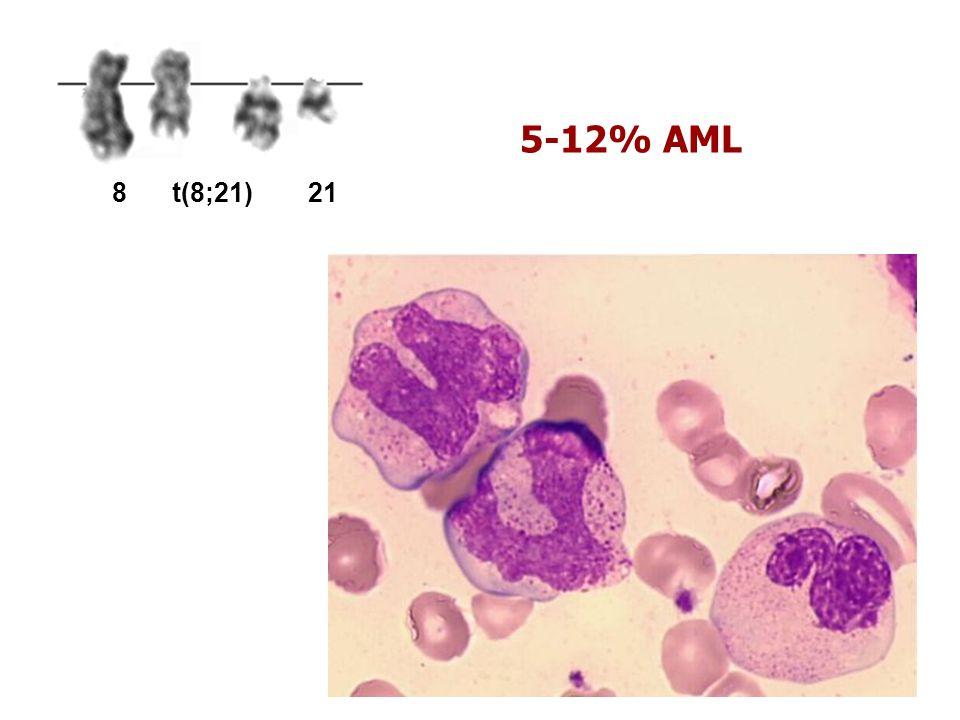 5-12% AML 8t(8;21)21