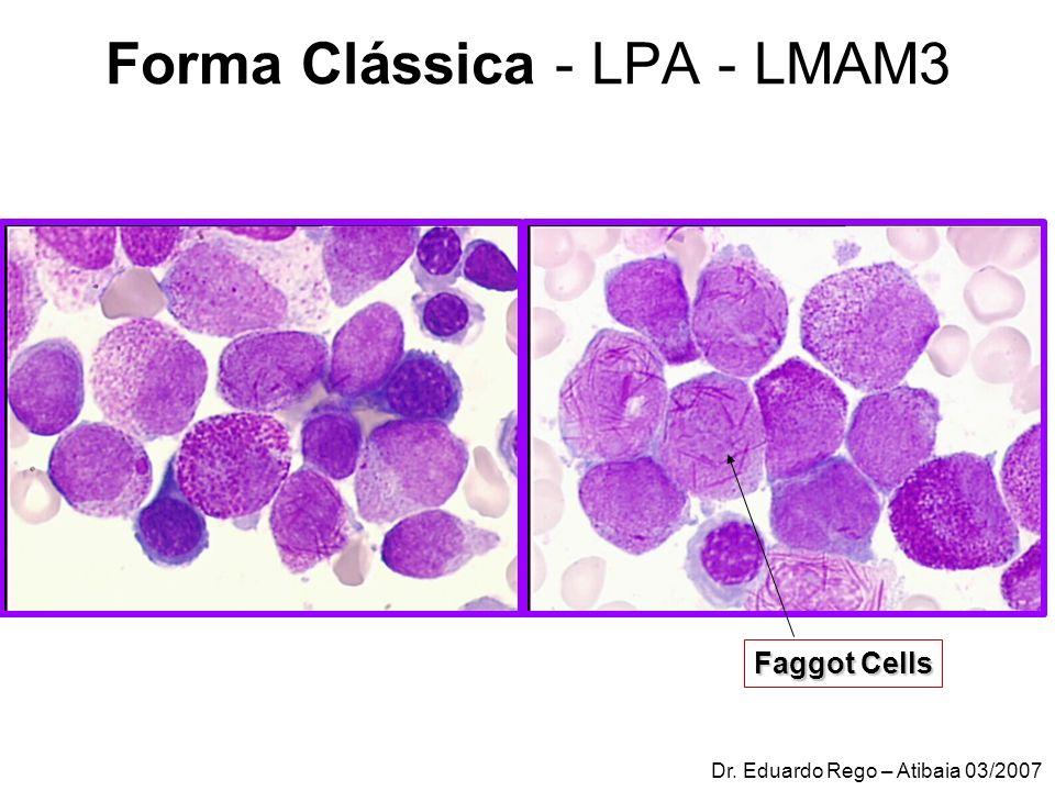 ORFAO et al CD33 homogêneo nas células blásticas em 82% dos casos CD13 em todas as células leucêmicas com padrão heterogêneo de expressão (100%) Expressão de CD34/CD15 (100%) Discriminação entre M3/PLM-RARα (+) e M3/PLM-RARα (-) : ٭ padrão fenotípico CD34/CD15 ٭ expressão de CD13 ٭ presença de subtipo maior de células blásticas.