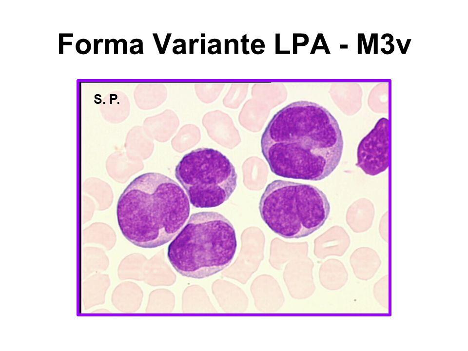 ORFAO et al A sensibilidade da imunofenotipagem para selecionar casos PLM-RARα foi de 100% e especificidade 99% HLA-DR negativo é provavelmente o achado mais específico ( 91%)
