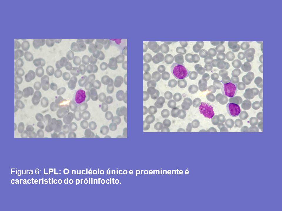 Figura 6: LPL: O nucléolo único e proeminente é característico do prólinfocito.