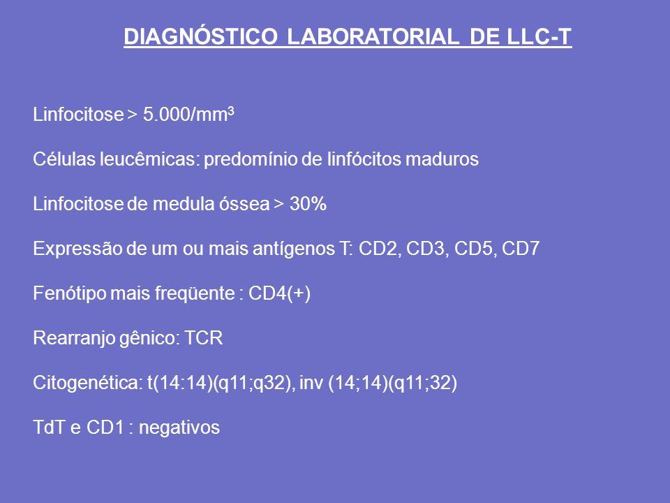DIAGNÓSTICO LABORATORIAL DE LLC-T Linfocitose > 5.000/mm 3 Células leucêmicas: predomínio de linfócitos maduros Linfocitose de medula óssea > 30% Expr