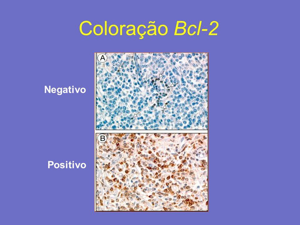 Positivo Negativo Coloração Bcl-2