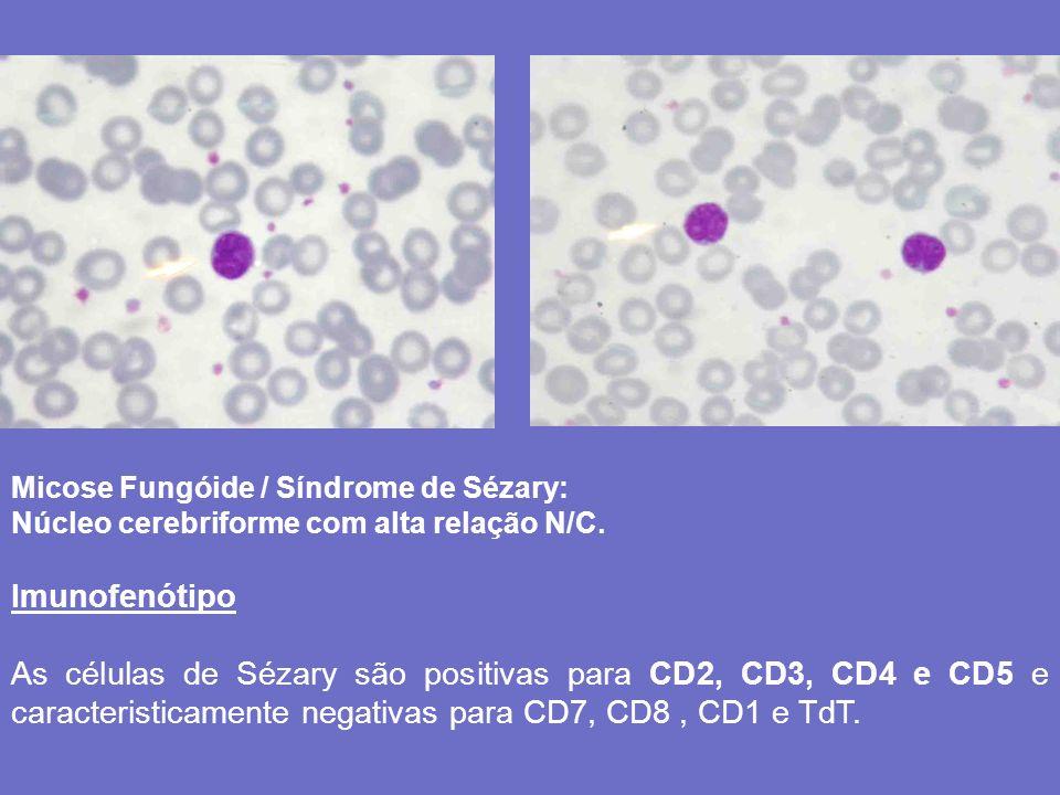 Micose Fungóide / Síndrome de Sézary: Núcleo cerebriforme com alta relação N/C. Imunofenótipo As células de Sézary são positivas para CD2, CD3, CD4 e