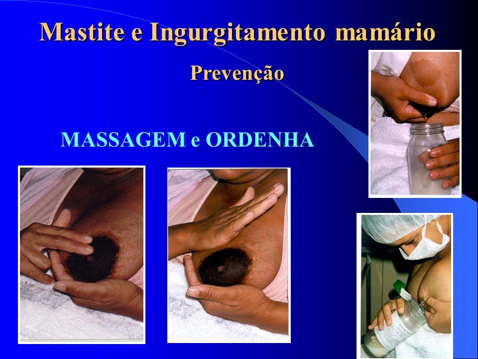 MASSAGEM e ORDENHA Mastite e Ingurgitamento mamário Prevenção
