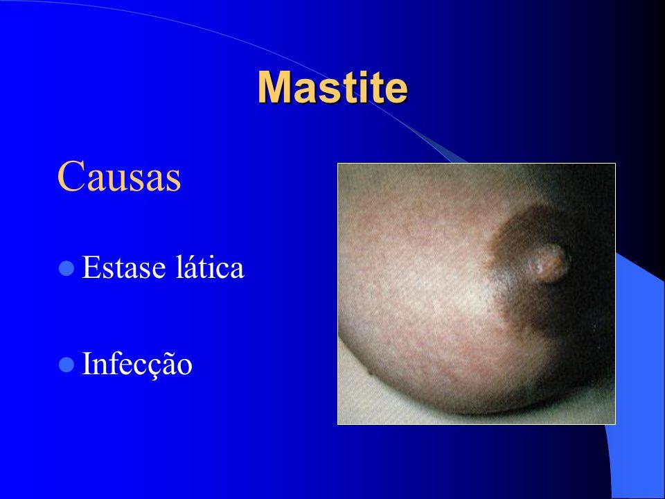 Fatores Facilitadores Fatores que favorecem a estagnação do leite MASTITE Primária Secundária Estase láctea Infecção ( geral/ por –fissuras)