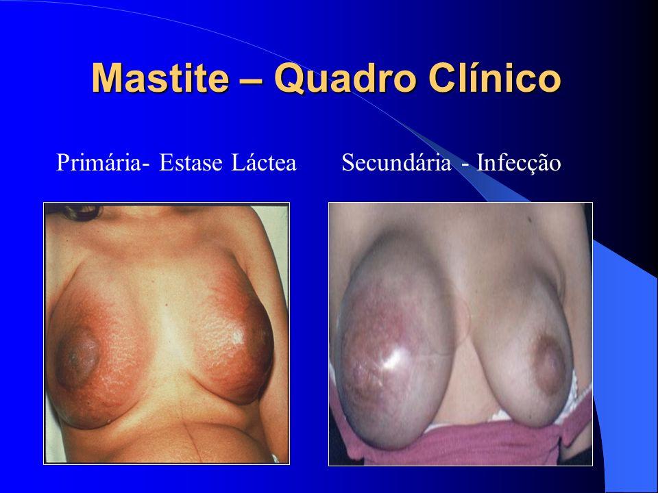 Mastite – Quadro Clínico Primária- Estase LácteaSecundária - Infecção