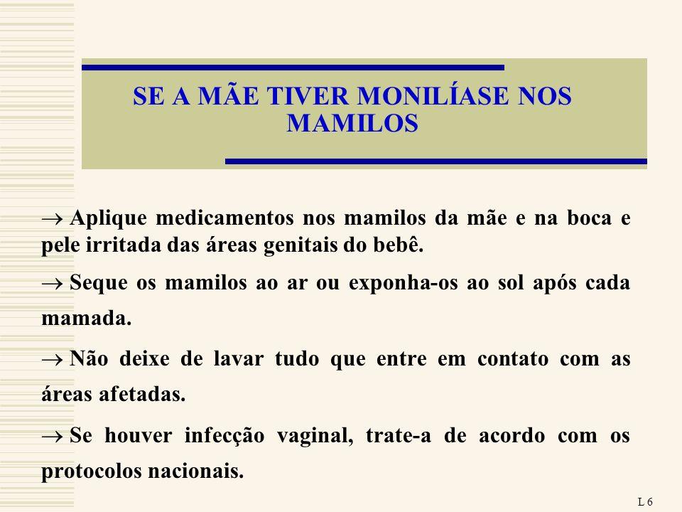 SE A MÃE TIVER MONILÍASE NOS MAMILOS Aplique medicamentos nos mamilos da mãe e na boca e pele irritada das áreas genitais do bebê. Seque os mamilos ao