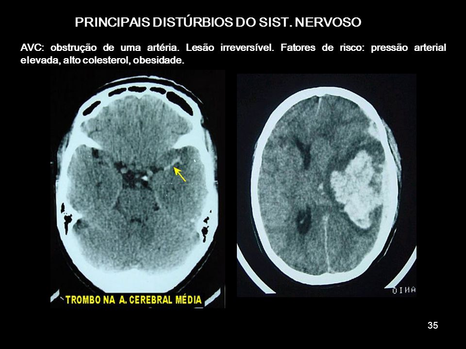 34 PRINCIPAIS DISTÚRBIOS DO SIST. NERVOSO Esclerose múltipla: uma doença auto-imune. Destruição da bainha de mielina. problemas visuais, dist ú rbios