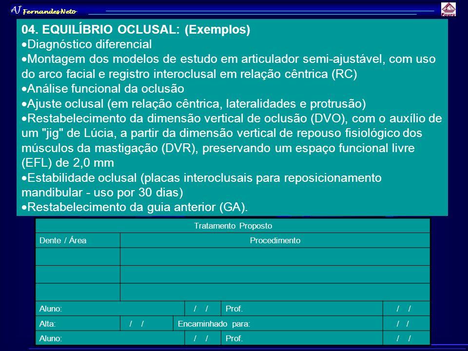 AJ Fernandes Neto 04. EQUILÍBRIO OCLUSAL: (Exemplos) Diagnóstico diferencial Montagem dos modelos de estudo em articulador semi-ajustável, com uso do