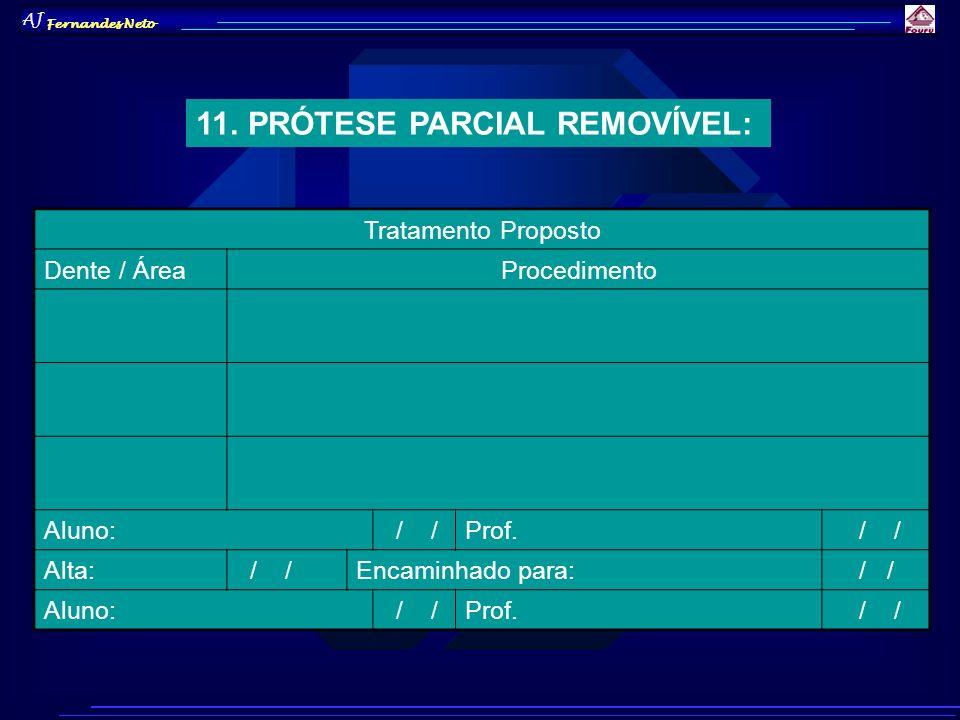 AJ Fernandes Neto 11. PRÓTESE PARCIAL REMOVÍVEL: Tratamento Proposto Dente / ÁreaProcedimento Aluno: / /Prof. / / Alta: / /Encaminhado para: / / Aluno