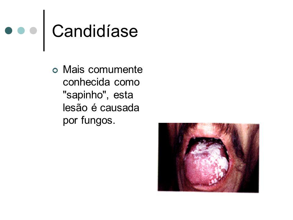 Candidíase Mais comumente conhecida como sapinho , esta lesão é causada por fungos.