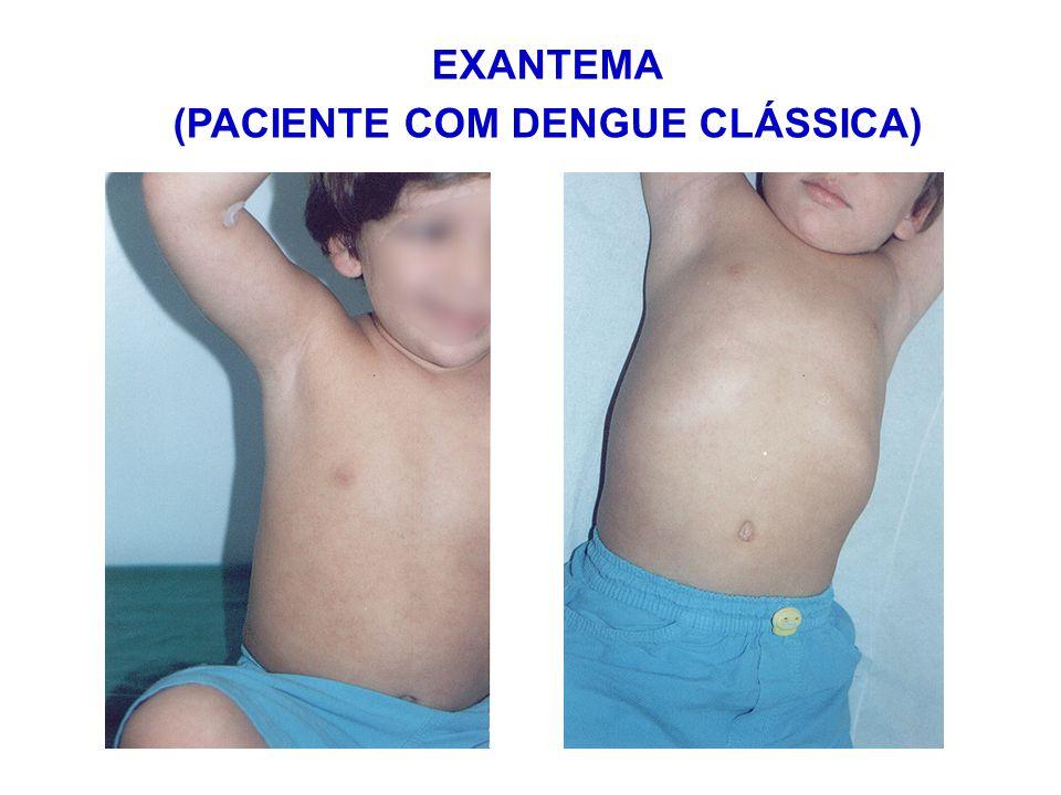 EXANTEMA (PACIENTE COM DENGUE CLÁSSICA)