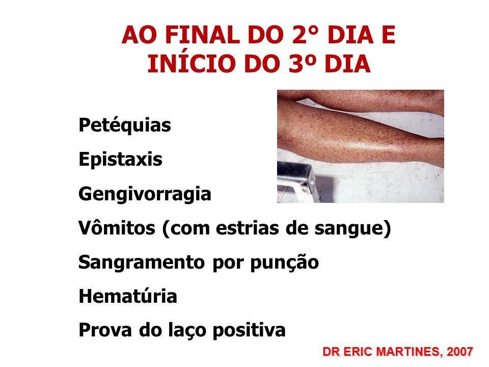 AO FINAL DO 2° DIA E INÍCIO DO 3º DIA Petéquias Epistaxis Gengivorragia Vômitos (com estrias de sangue) Sangramento por punção Hematúria Prova do laço