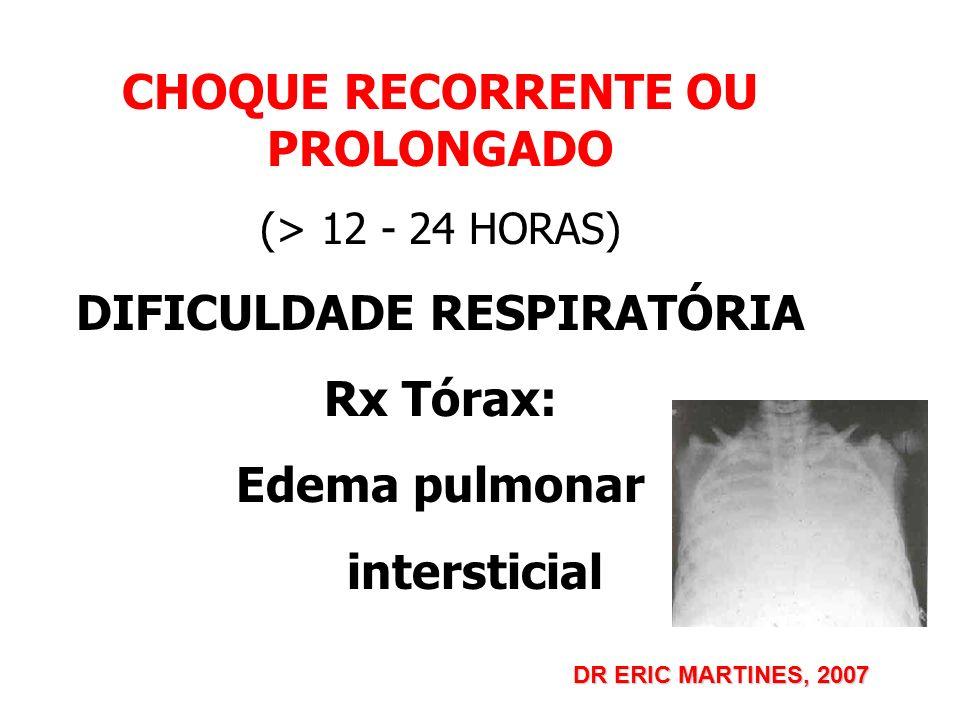 CHOQUE RECORRENTE OU PROLONGADO (> 12 - 24 HORAS) DIFICULDADE RESPIRATÓRIA Rx Tórax: Edema pulmonar intersticial DR ERIC MARTINES, 2007