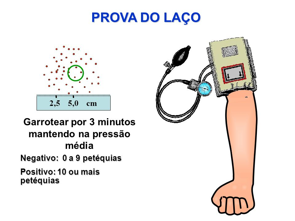 PROVA DO LAÇO Garrotear por 3 minutos mantendo na pressão média Negativo: 0 a 9 petéquias Positivo: 10 ou mais petéquias 2,5 5,0 cm