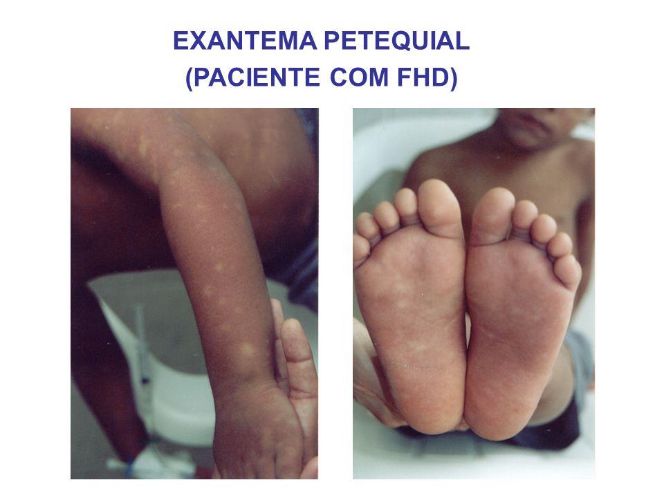 EXANTEMA PETEQUIAL (PACIENTE COM FHD)