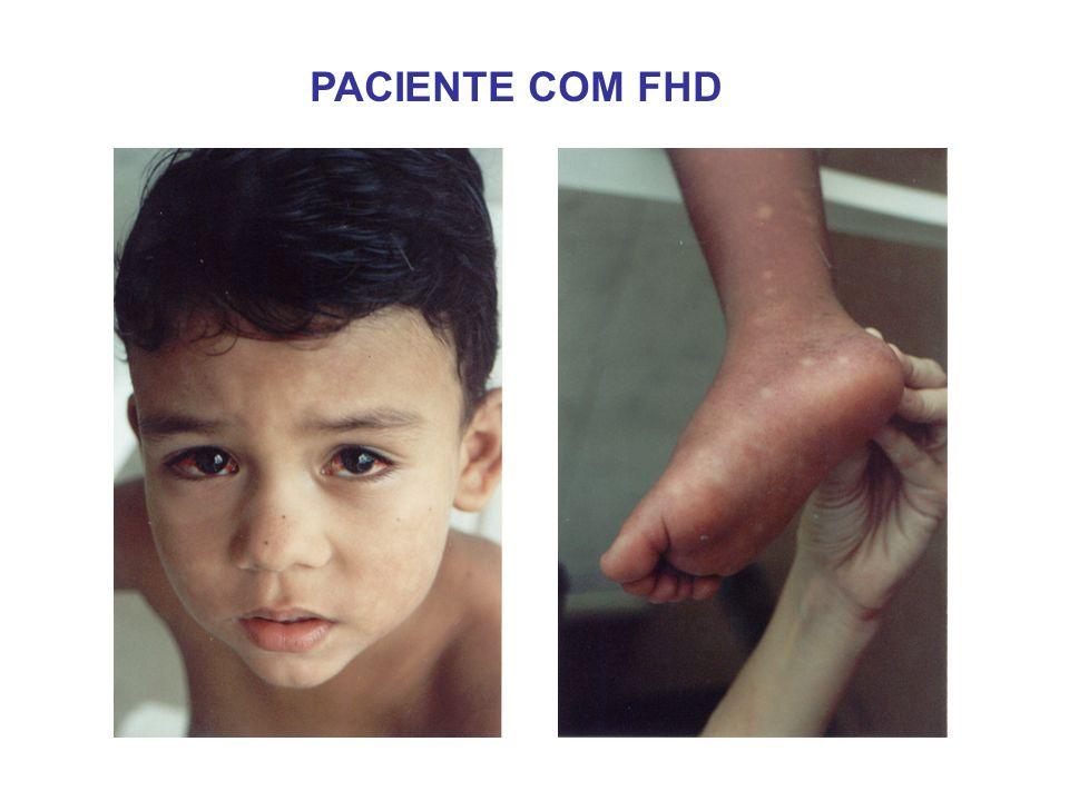 ACHADOS DE IMAGEM - FHD DERRAME PLEURAL ASCITE ESPESSAMENTO DE PAREDE DA VESÍCULA BILIAR EDEMA DE PÂNCREAS HEPATOMEGALIA ESPLENOMEGALIA LÍQUIDO PERICOLECÍSTICO VESÍCULA HIPERDISTENDIDA