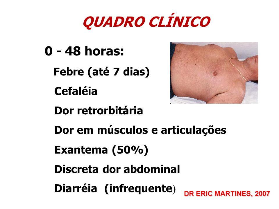 QUADRO CLÍNICO 0 - 48 horas: Febre (até 7 dias) Cefaléia Dor retrorbitária Dor em músculos e articulações Exantema (50%) Discreta dor abdominal Diarré