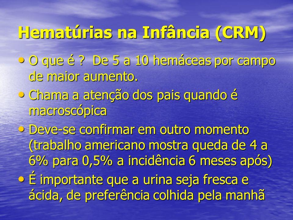 Hematúrias na Infância (CRM) O que é ? De 5 a 10 hemáceas por campo de maior aumento. O que é ? De 5 a 10 hemáceas por campo de maior aumento. Chama a