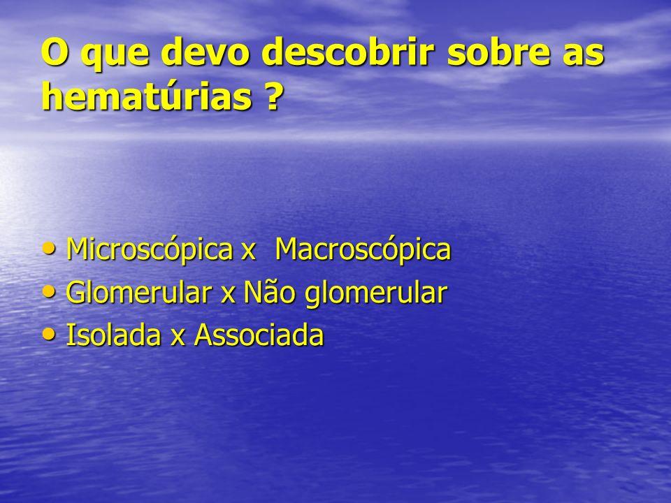 O que devo descobrir sobre as hematúrias ? Microscópica x Macroscópica Microscópica x Macroscópica Glomerular x Não glomerular Glomerular x Não glomer