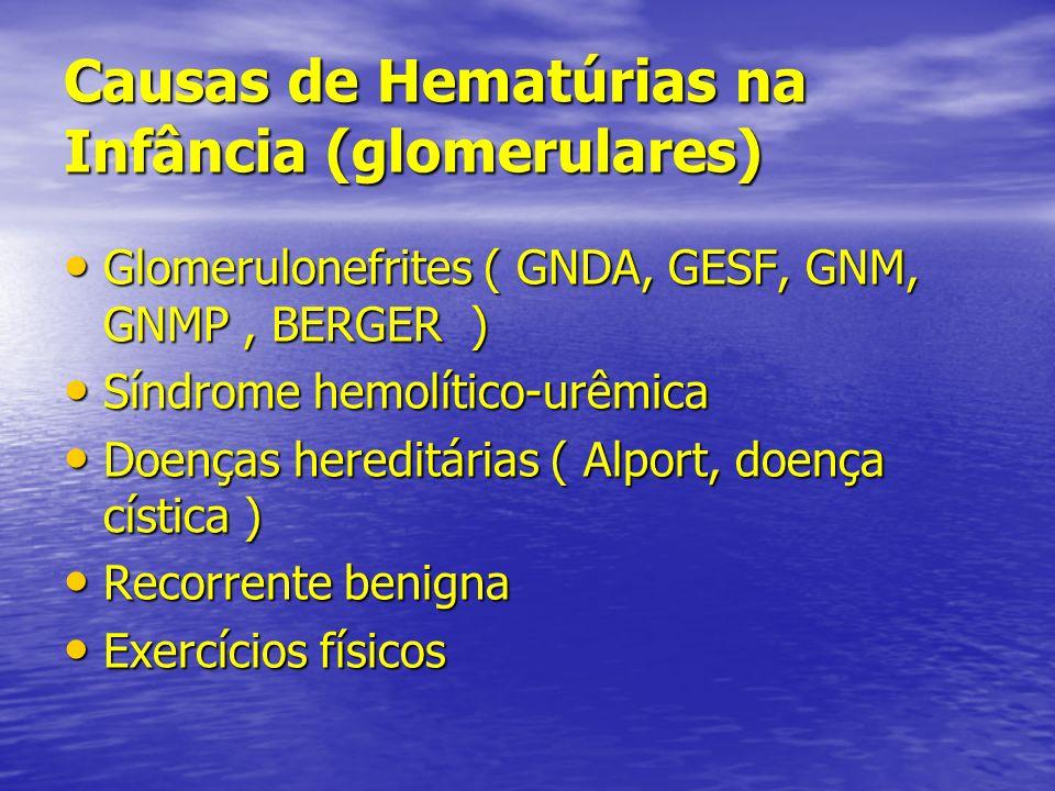 Causas de Hematúrias na Infância (glomerulares) Glomerulonefrites ( GNDA, GESF, GNM, GNMP, BERGER ) Glomerulonefrites ( GNDA, GESF, GNM, GNMP, BERGER