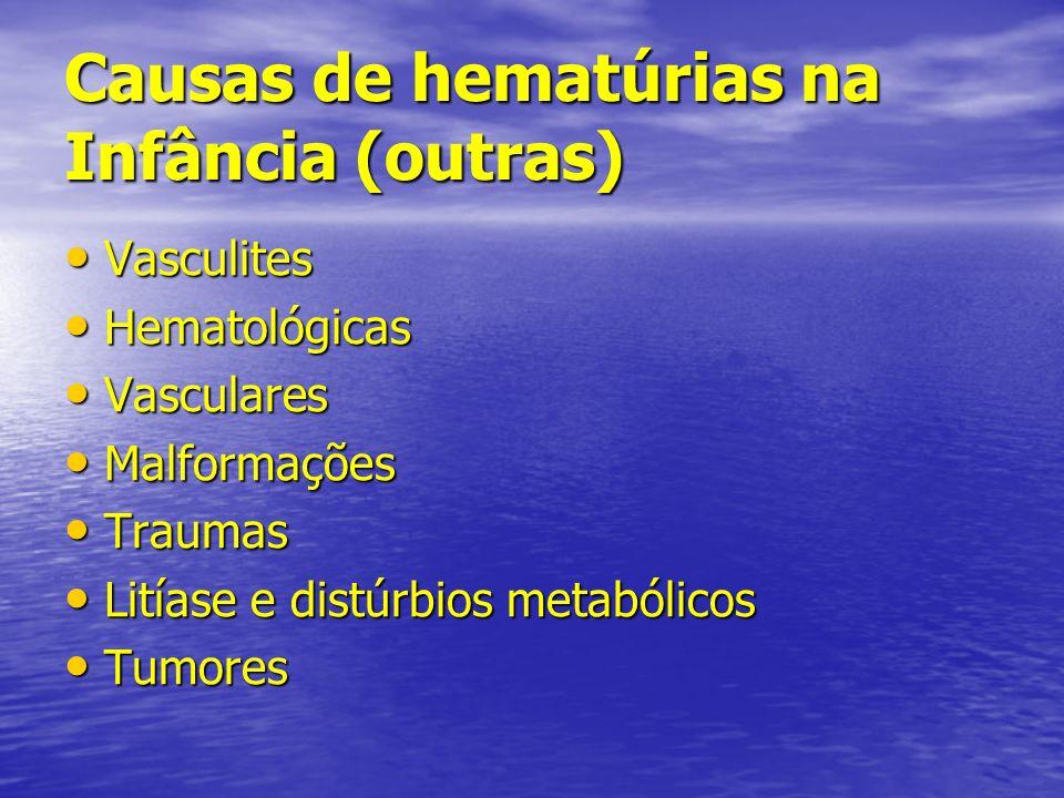 Causas de hematúrias na Infância (outras) Vasculites Vasculites Hematológicas Hematológicas Vasculares Vasculares Malformações Malformações Traumas Tr