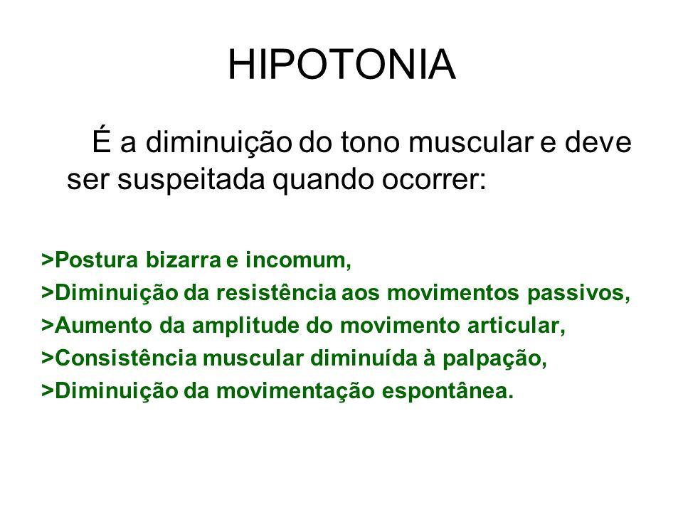 HIPOTONIA É a diminuição do tono muscular e deve ser suspeitada quando ocorrer: >Postura bizarra e incomum, >Diminuição da resistência aos movimentos
