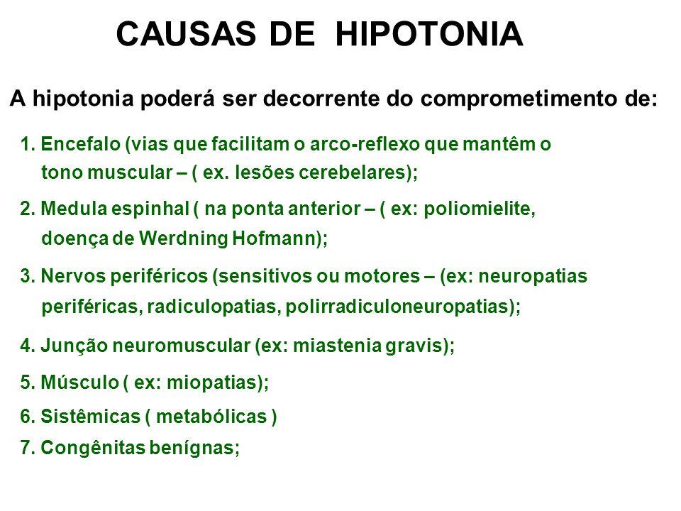 CAUSAS DE HIPOTONIA A hipotonia poderá ser decorrente do comprometimento de: 1. Encefalo (vias que facilitam o arco-reflexo que mantêm o tono muscular