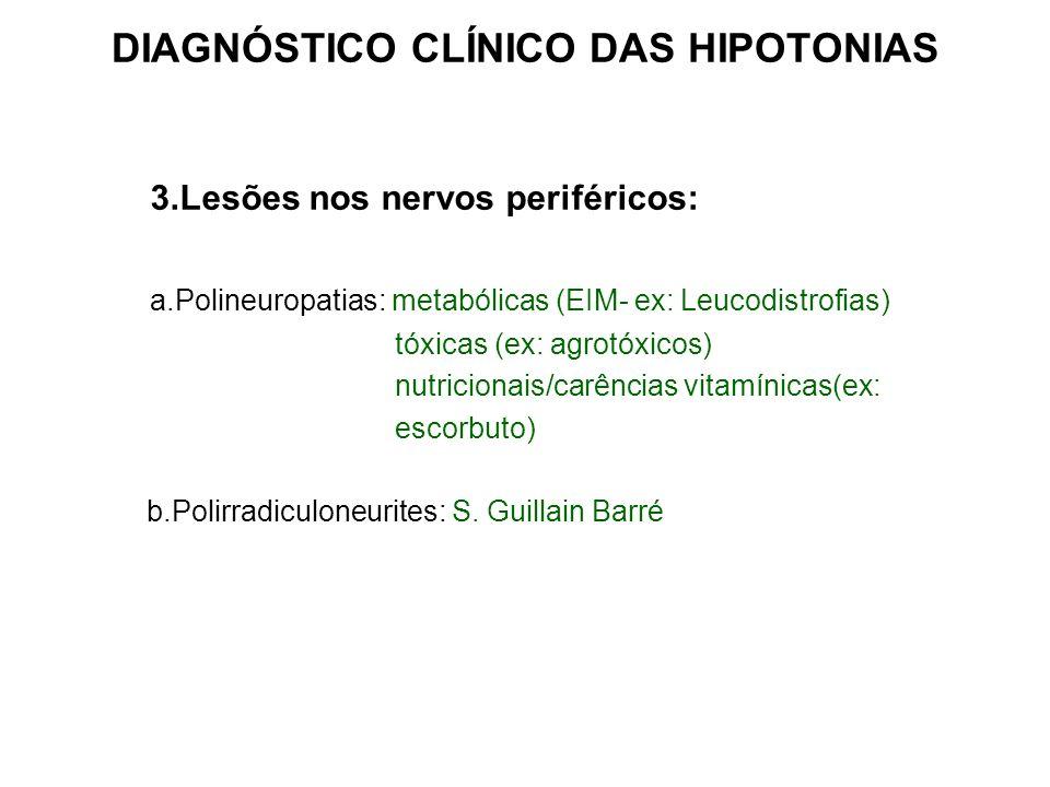DIAGNÓSTICO CLÍNICO DAS HIPOTONIAS 3.Lesões nos nervos periféricos: a.Polineuropatias: metabólicas (EIM- ex: Leucodistrofias) tóxicas (ex: agrotóxicos