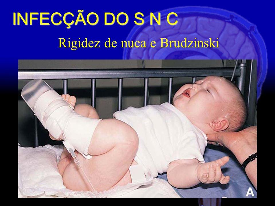 Rigidez de nuca e Brudzinski INFECÇÃO DO S N C