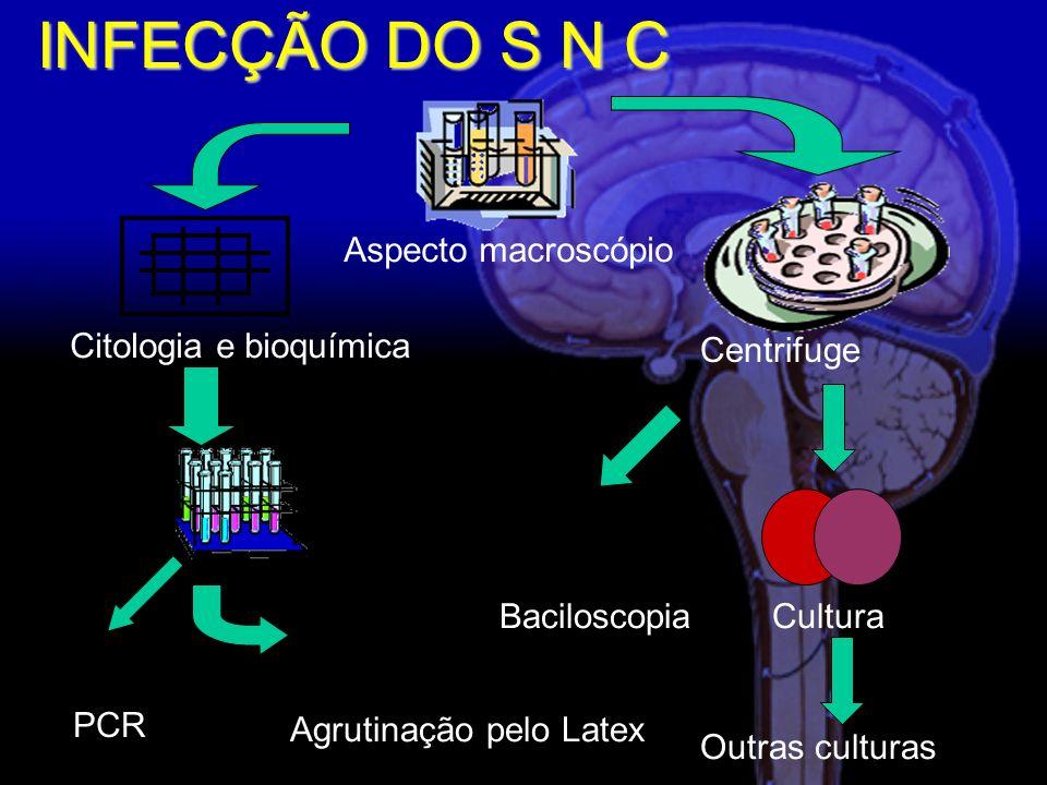 Citologia e bioquímica Agrutinação pelo Latex Baciloscopia Centrifuge Aspecto macroscópio Cultura Outras culturas INFECÇÃO DO S N C PCR