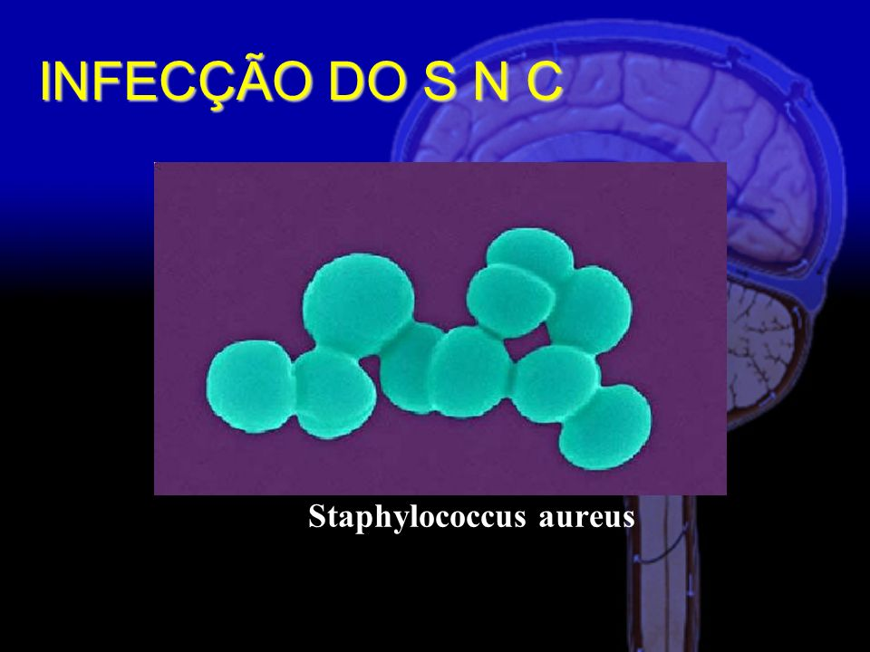 Staphylococcus aureus INFECÇÃO DO S N C