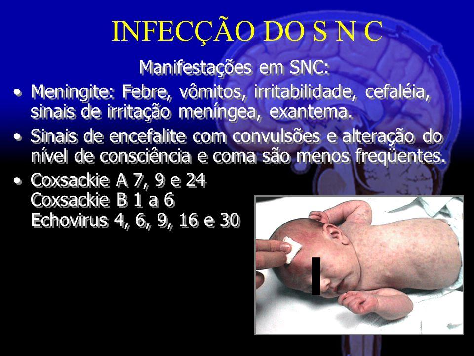 Manifestações em SNC: Meningite: Febre, vômitos, irritabilidade, cefaléia, sinais de irritação meníngea, exantema.