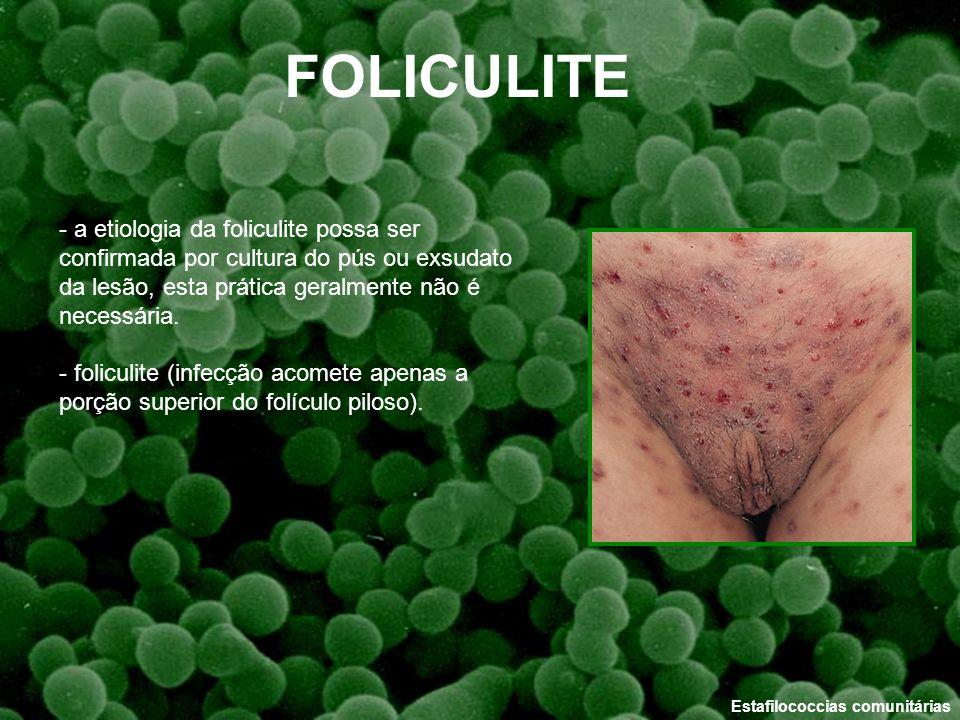 Estafilococcias comunitárias - a etiologia da foliculite possa ser confirmada por cultura do pús ou exsudato da lesão, esta prática geralmente não é n