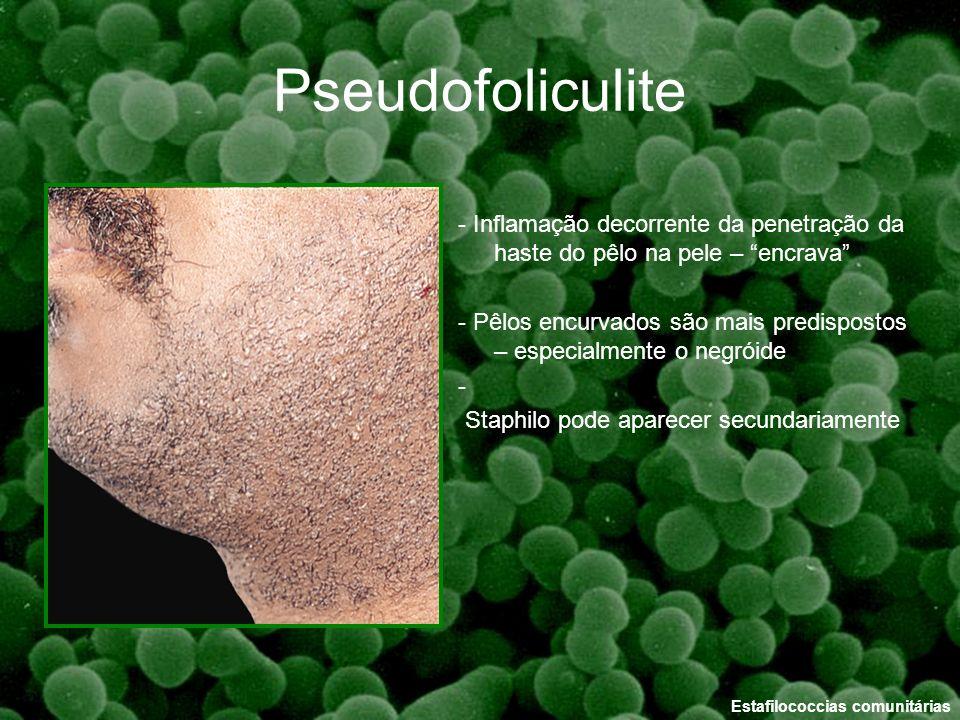 Pseudofoliculite - Inflamação decorrente da penetração da haste do pêlo na pele – encrava - Pêlos encurvados são mais predispostos – especialmente o n