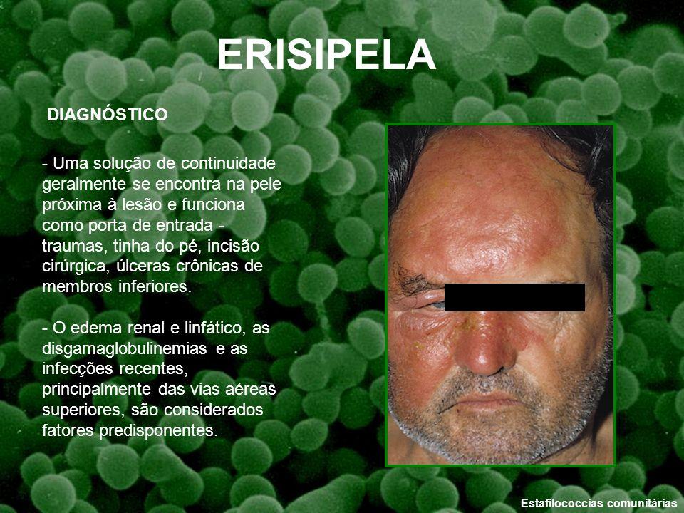 Estafilococcias comunitárias ERISIPELA DIAGNÓSTICO - Uma solução de continuidade geralmente se encontra na pele próxima à lesão e funciona como porta