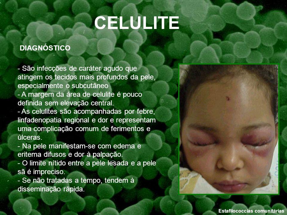 Estafilococcias comunitárias CELULITE DIAGNÓSTICO - São infecções de caráter agudo que atingem os tecidos mais profundos da pele, especialmente o subc