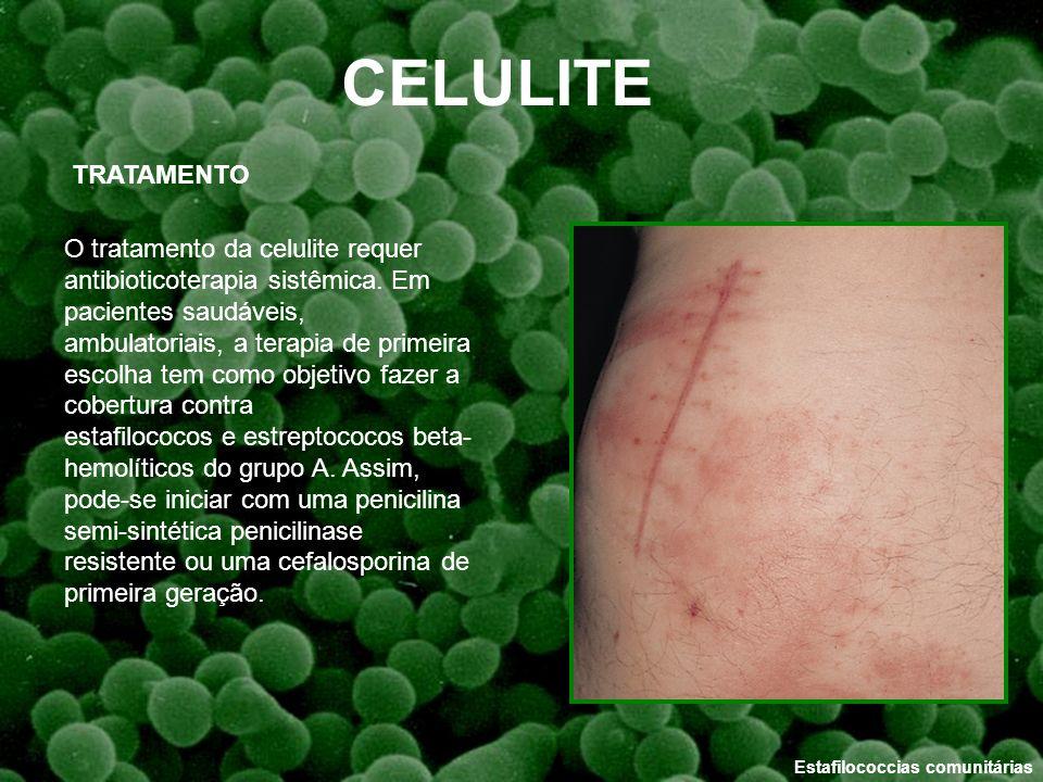 Estafilococcias comunitárias O tratamento da celulite requer antibioticoterapia sistêmica. Em pacientes saudáveis, ambulatoriais, a terapia de primeir