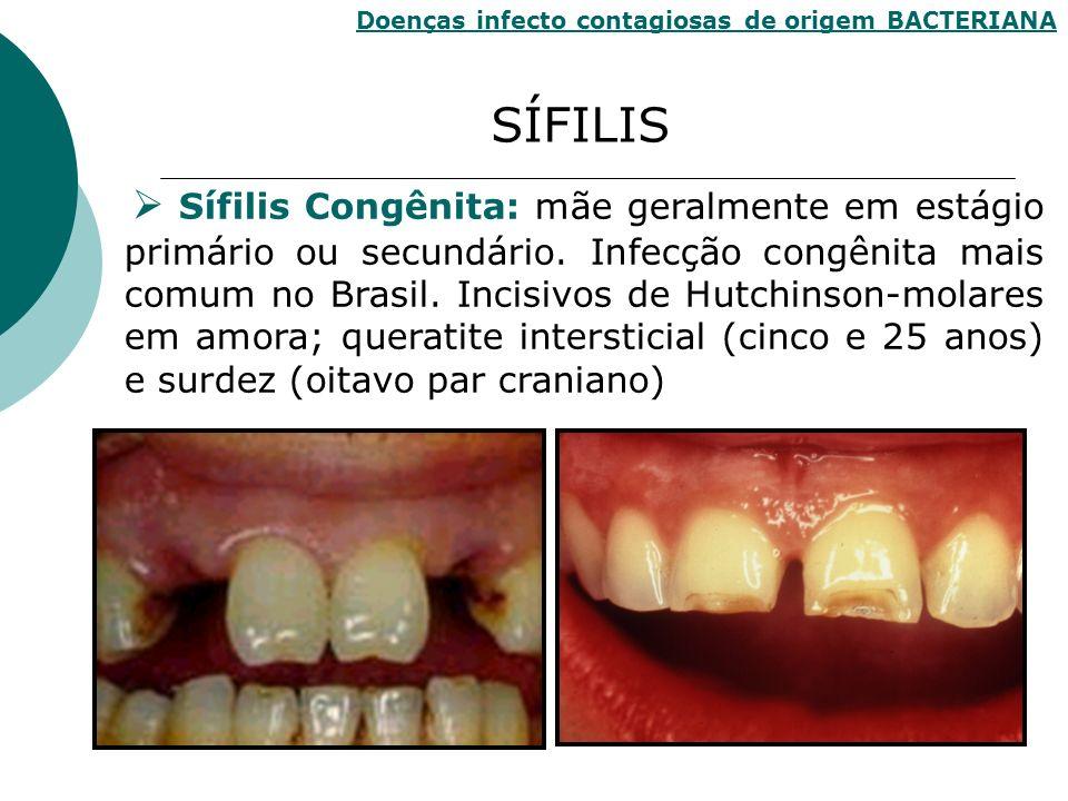 Sífilis Congênita: mãe geralmente em estágio primário ou secundário. Infecção congênita mais comum no Brasil. Incisivos de Hutchinson-molares em amora