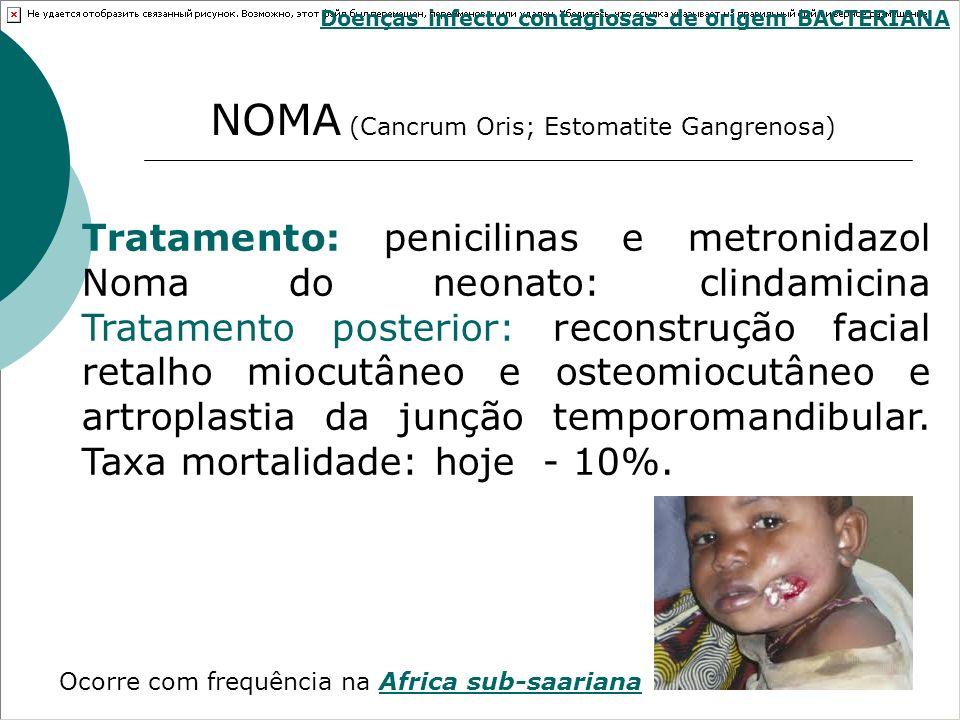 Tratamento: penicilinas e metronidazol Noma do neonato: clindamicina Tratamento posterior: reconstrução facial retalho miocutâneo e osteomiocutâneo e
