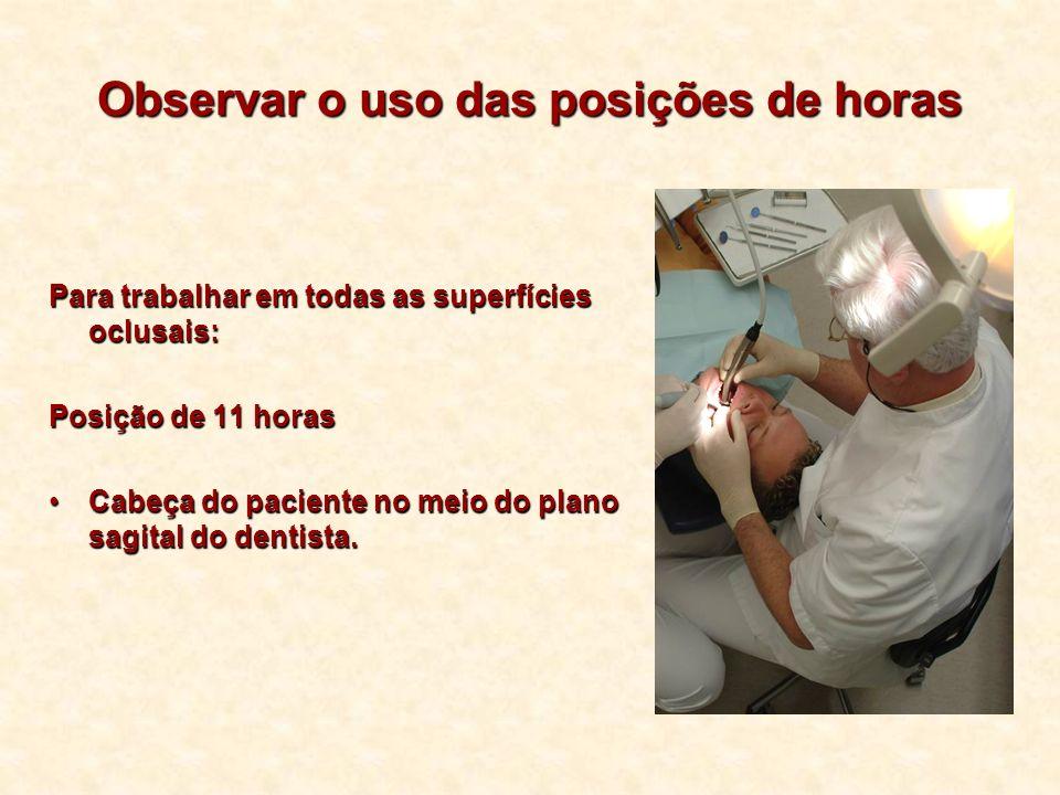 Observar o uso das posições de horas Para trabalhar em todas as superfícies oclusais: Posição de 11 horas Cabeça do paciente no meio do plano sagital