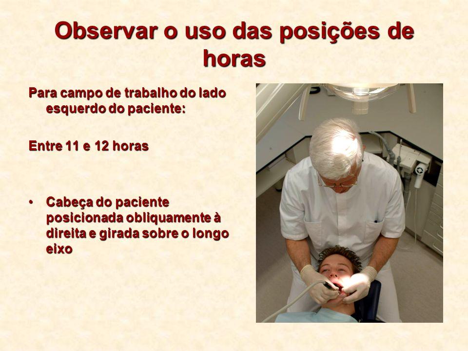 Para campo de trabalho do lado esquerdo do paciente: Entre 11 e 12 horas Cabeça do paciente posicionada obliquamente à direita e girada sobre o longo