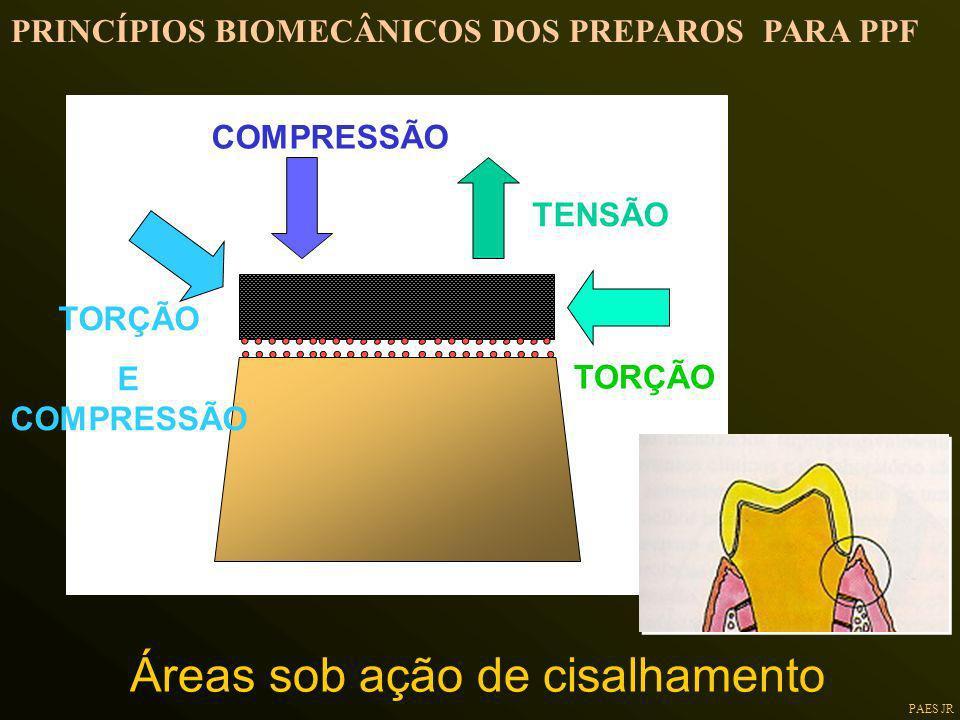 PAES JR TENSÃO COMPRESSÃO TORÇÃO E COMPRESSÃO Áreas sob ação de cisalhamento PRINCÍPIOS BIOMECÂNICOS DOS PREPAROS PARA PPF