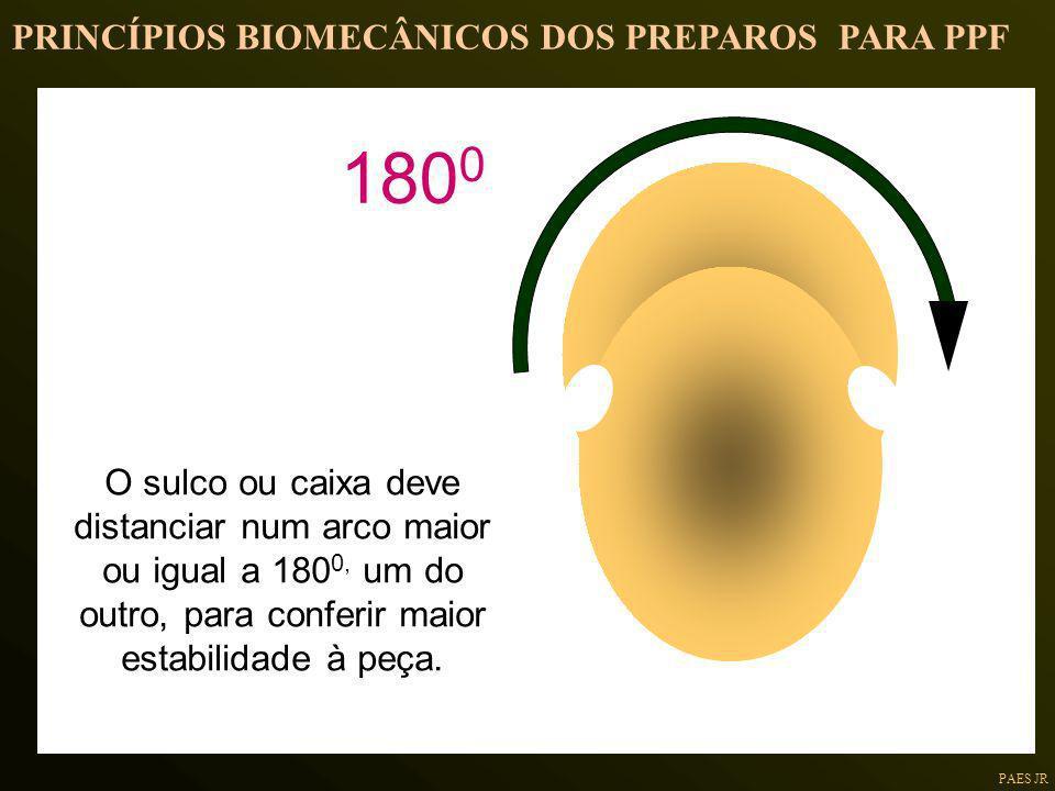 PAES JR 180 0 O sulco ou caixa deve distanciar num arco maior ou igual a 180 0, um do outro, para conferir maior estabilidade à peça. PRINCÍPIOS BIOME