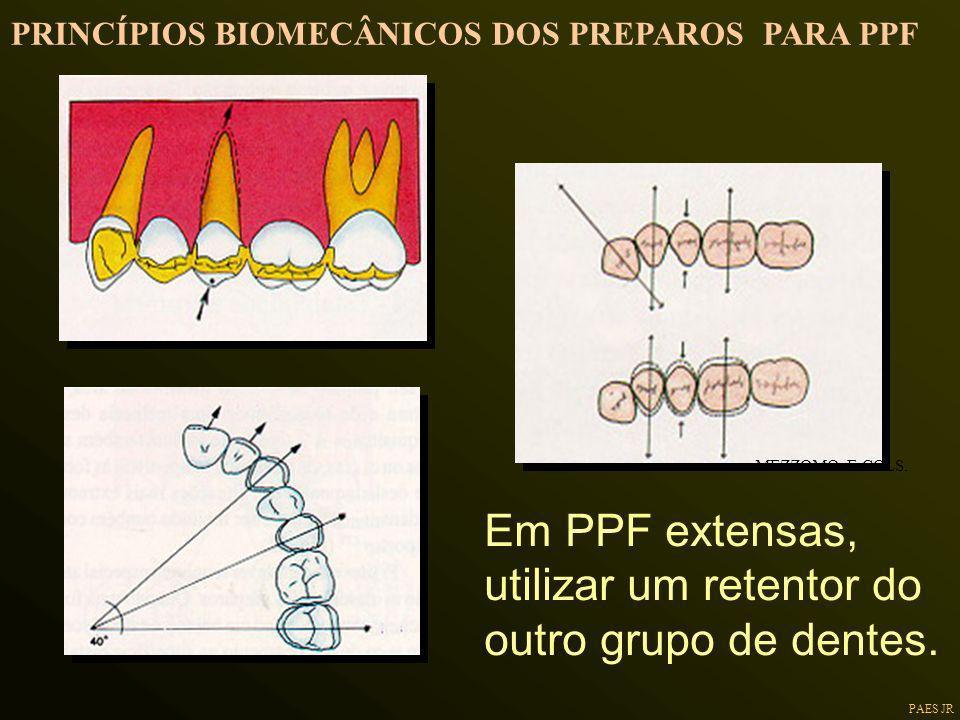PAES JR Em PPF extensas, utilizar um retentor do outro grupo de dentes. MEZZOMO E COLS. PRINCÍPIOS BIOMECÂNICOS DOS PREPAROS PARA PPF